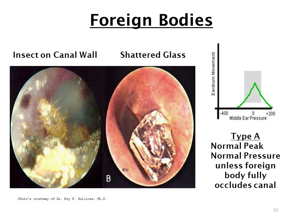 unless foreign body fully occludes canal
