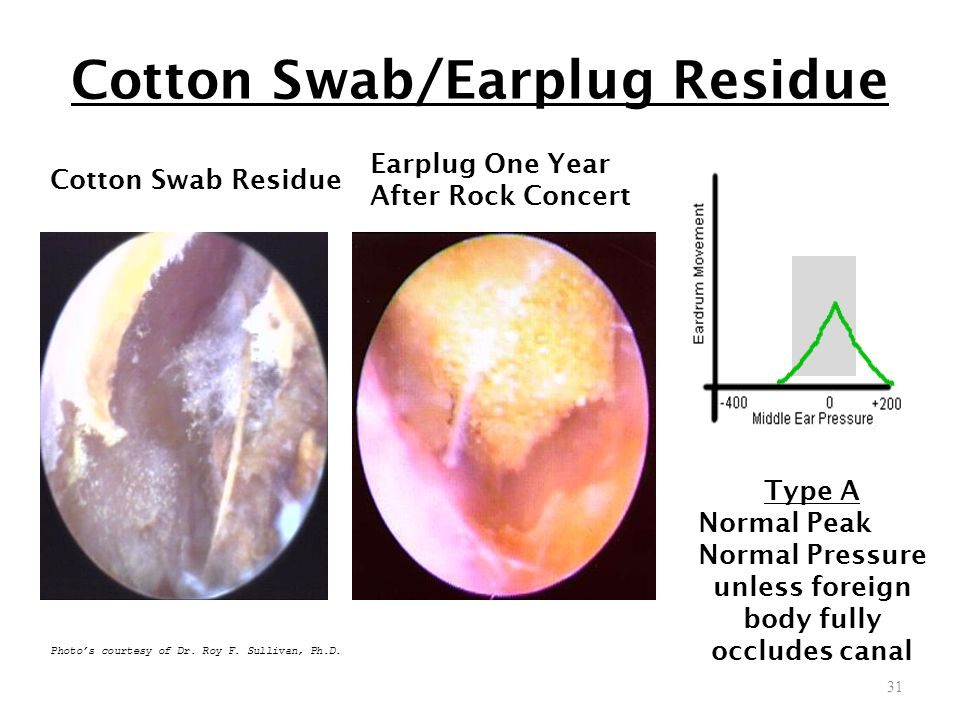 Cotton Swab/Earplug Residue