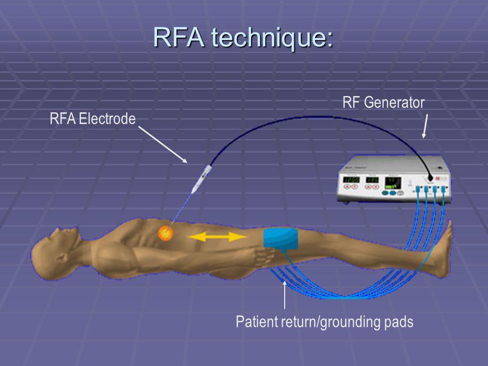 RFA technique: RF Generator RFA Electrode