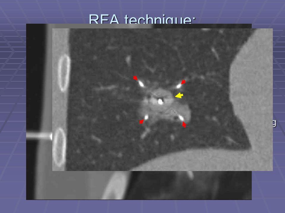 RFA technique: RITA/Angiodynamics