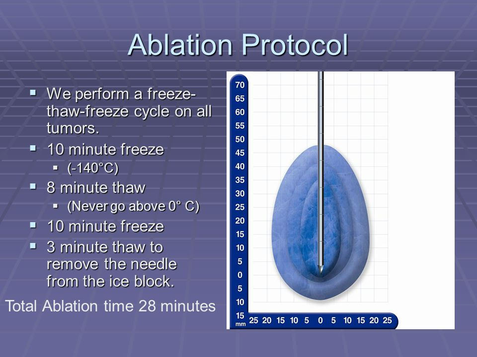Ablation Protocol We perform a freeze-thaw-freeze cycle on all tumors.
