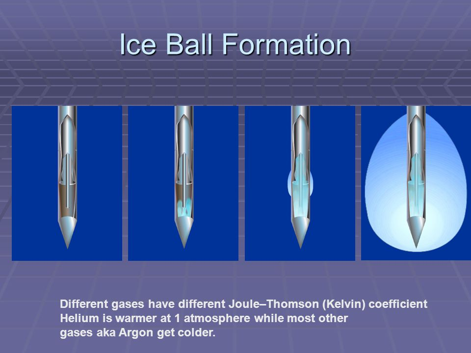 Ice Ball Formation Different gases have different Joule–Thomson (Kelvin) coefficient. Helium is warmer at 1 atmosphere while most other.
