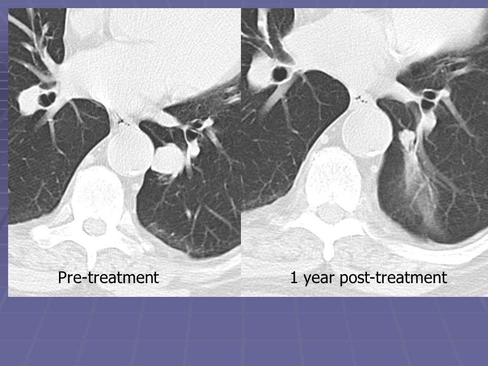 Pre-treatment 1 year post-treatment