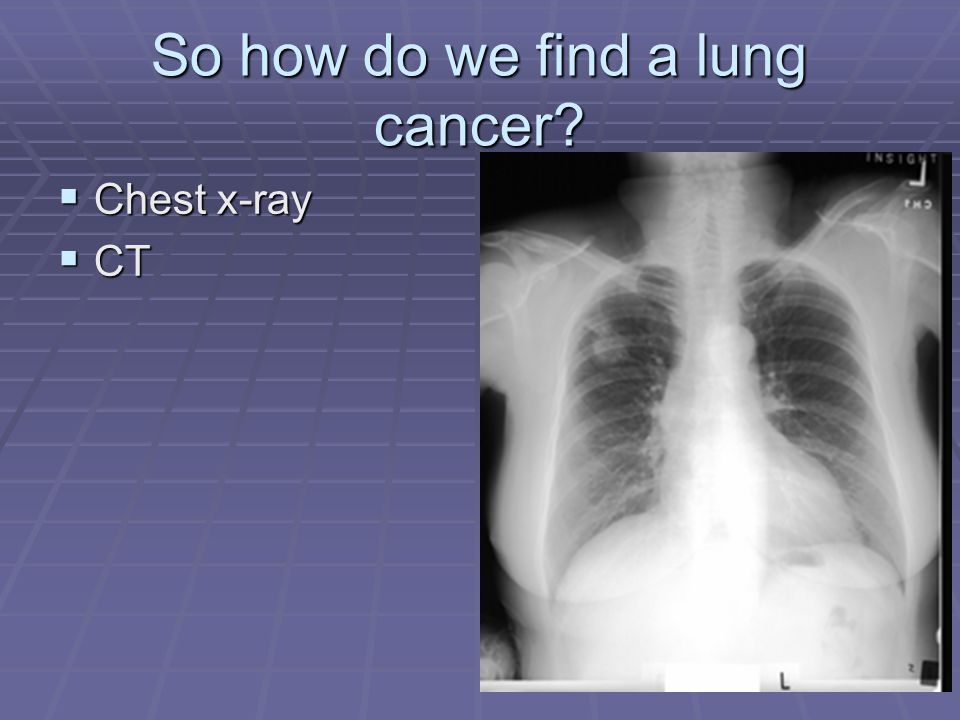 So how do we find a lung cancer