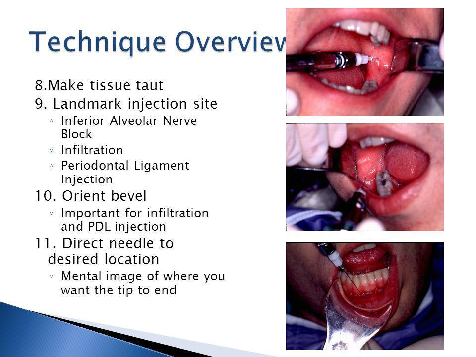 Technique Overview 8.Make tissue taut 9. Landmark injection site