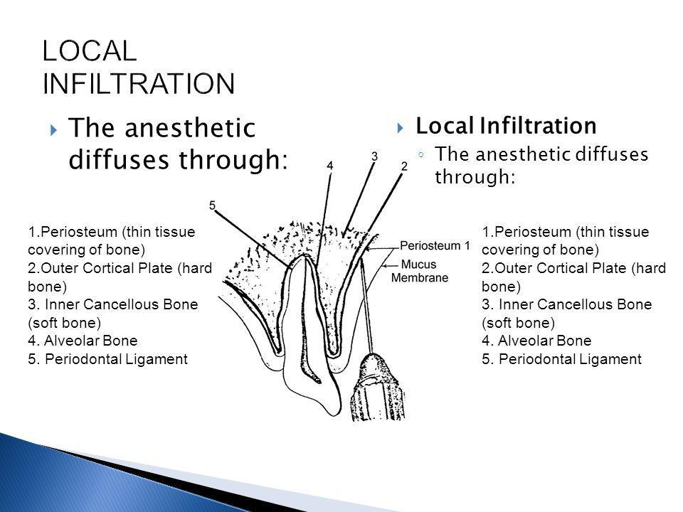 LOCAL INFILTRATION The anesthetic diffuses through: Local Infiltration