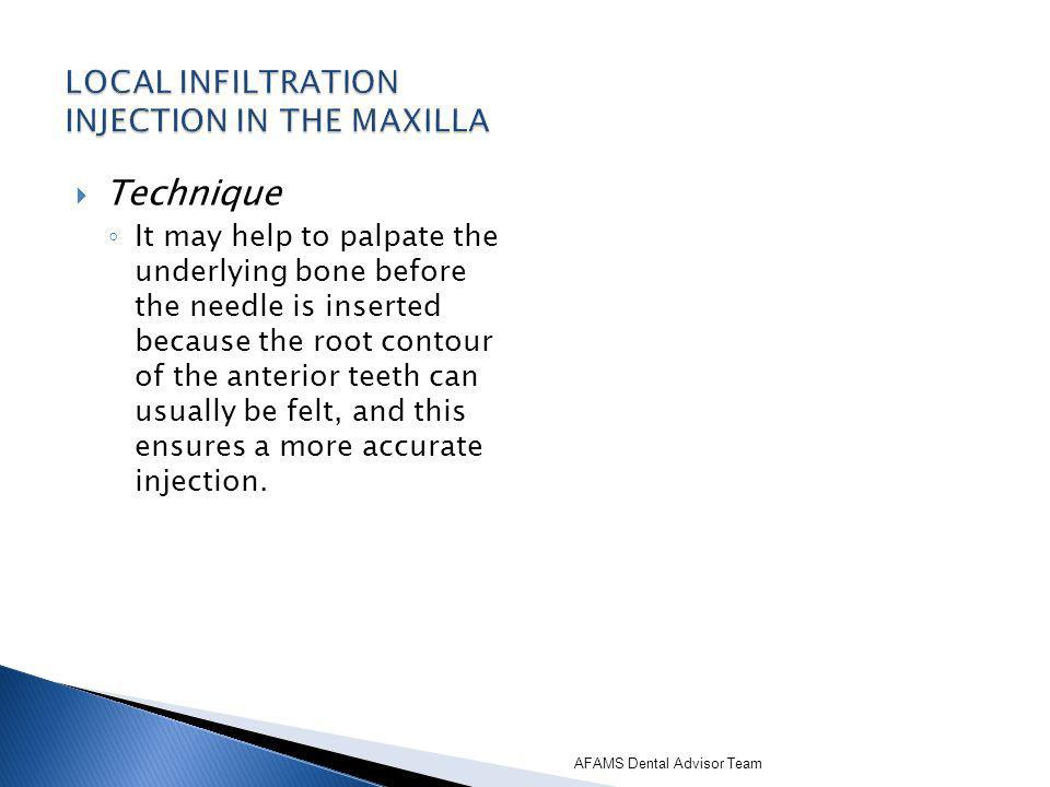 LOCAL INFILTRATION INJECTION IN THE MAXILLA
