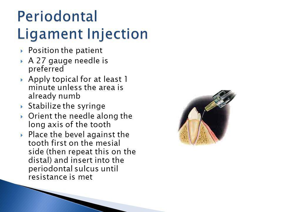 Periodontal Ligament Injection
