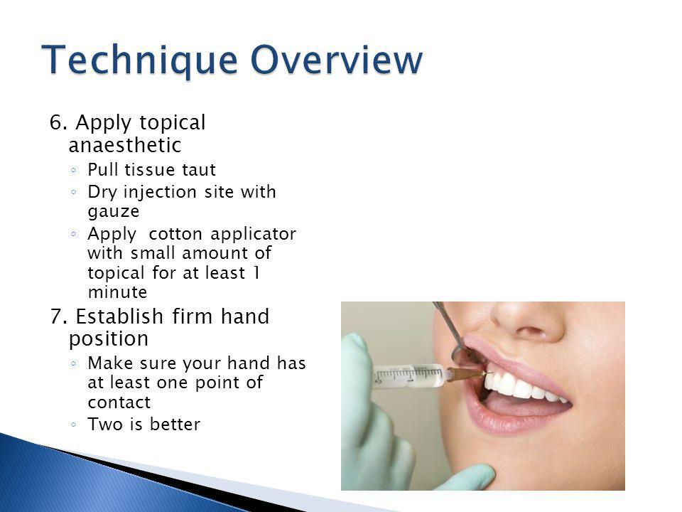 Technique Overview 6. Apply topical anaesthetic