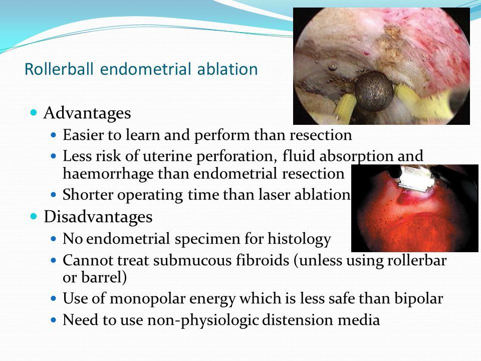 Rollerball endometrial ablation
