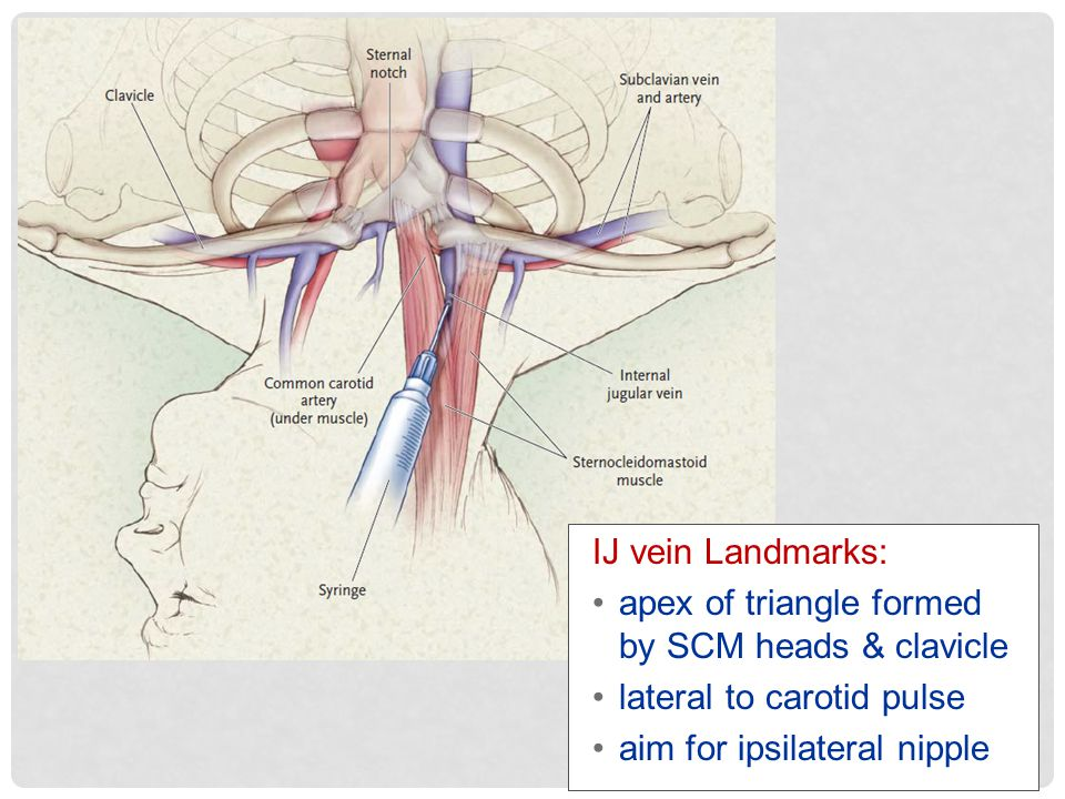 IJ vein Landmarks: apex of triangle formed by SCM heads & clavicle.