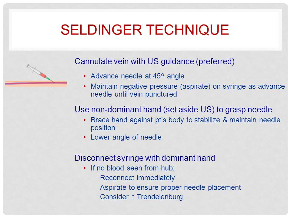 Seldinger technique Cannulate vein with US guidance (preferred)