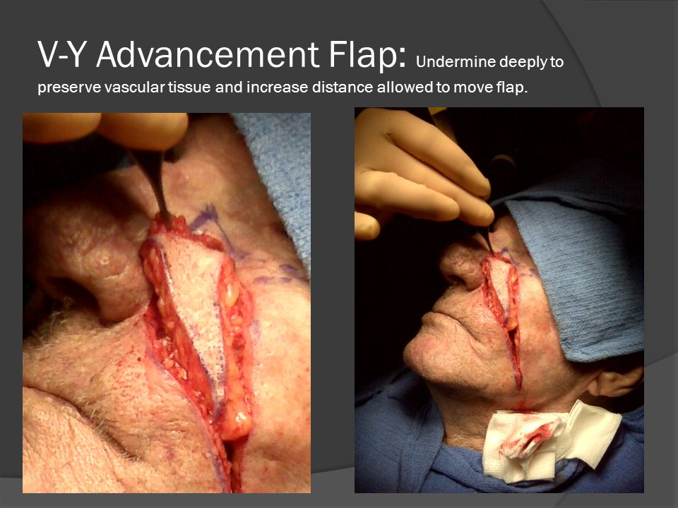 V-Y Advancement Flap: Undermine deeply to preserve vascular tissue and increase distance allowed to move flap.