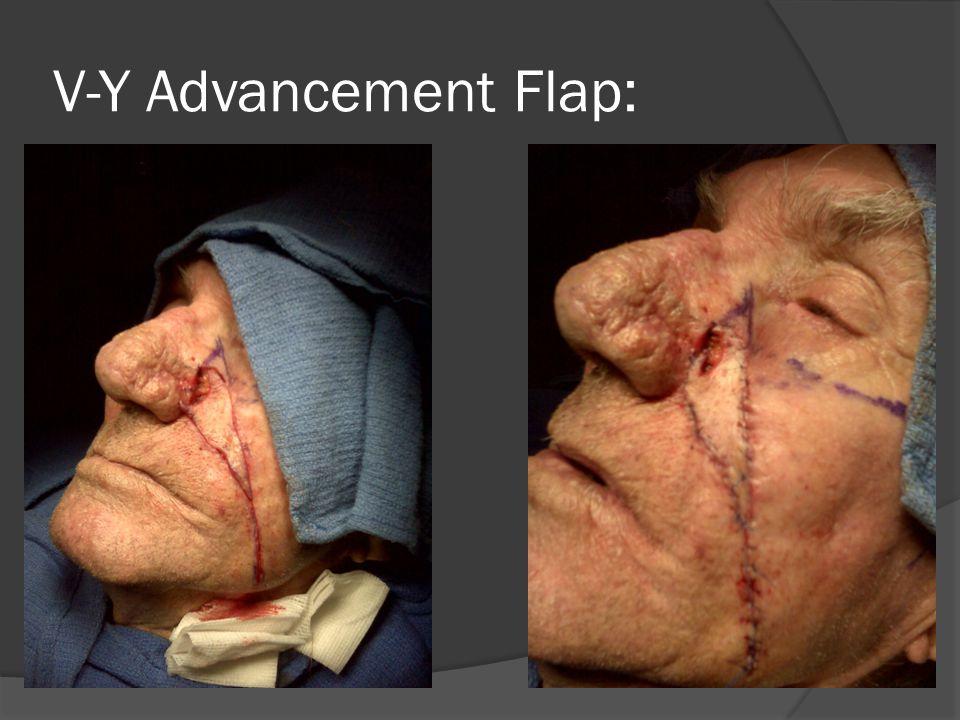 V-Y Advancement Flap:
