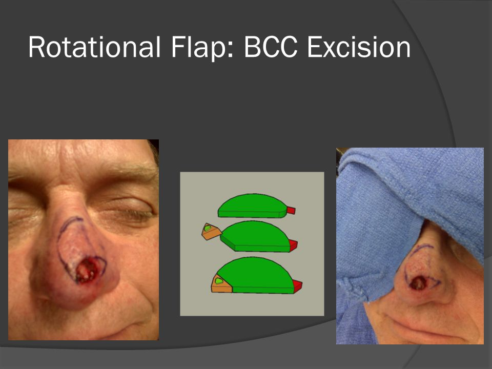 Rotational Flap: BCC Excision