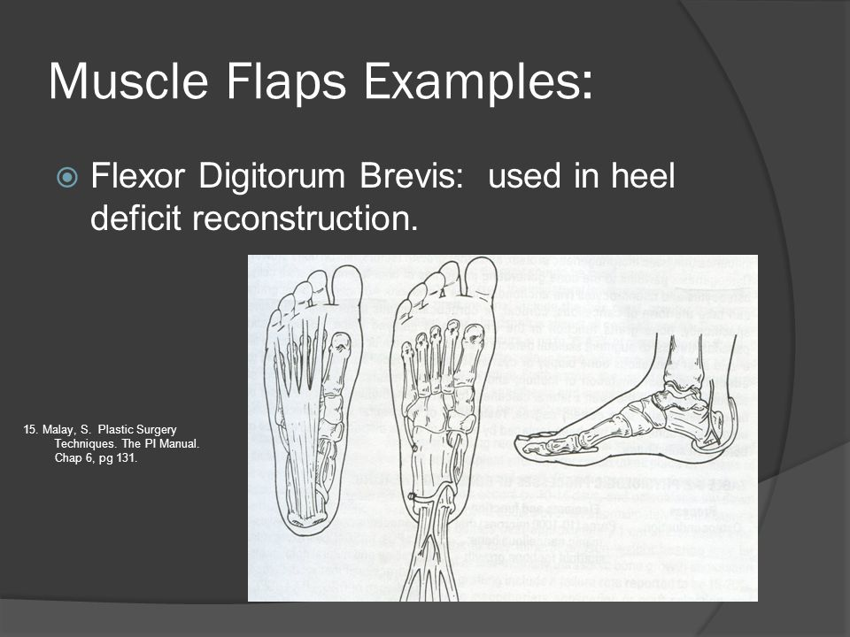 Muscle Flaps Examples: