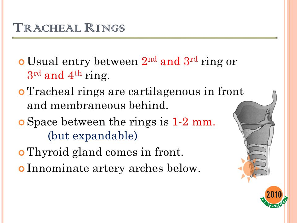 Tracheal Rings Usual entry between 2nd and 3rd ring or 3rd and 4th ring. Tracheal rings are cartilagenous in front and membraneous behind.