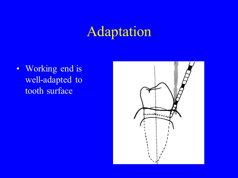 Adaptation Working end is well-adapted to tooth surface