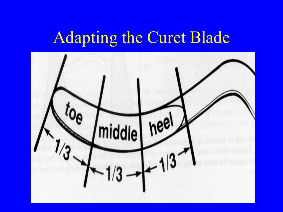 Adapting the Curet Blade