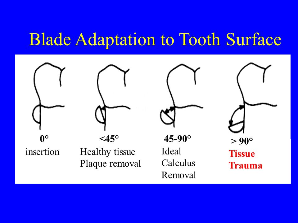 Blade Adaptation to Tooth Surface