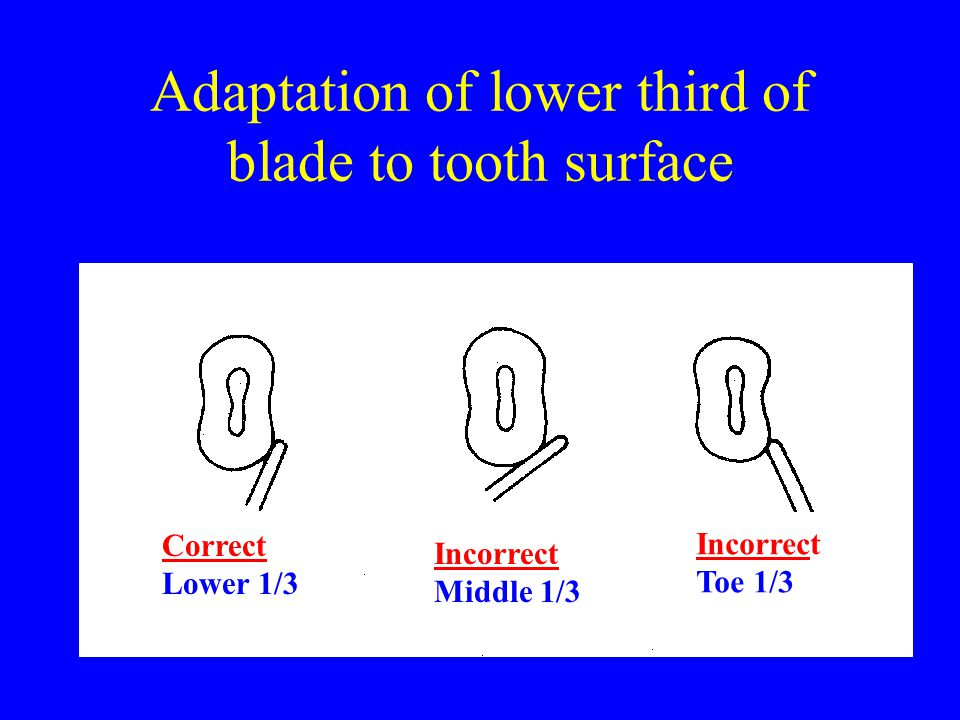 Adaptation of lower third of blade to tooth surface