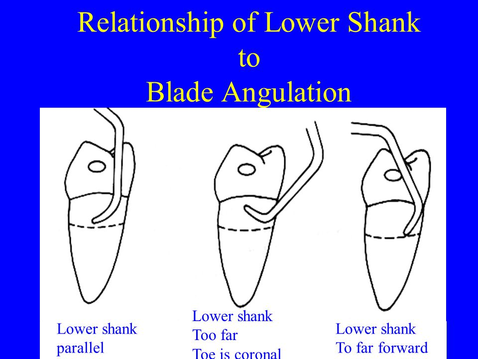 Relationship of Lower Shank to Blade Angulation
