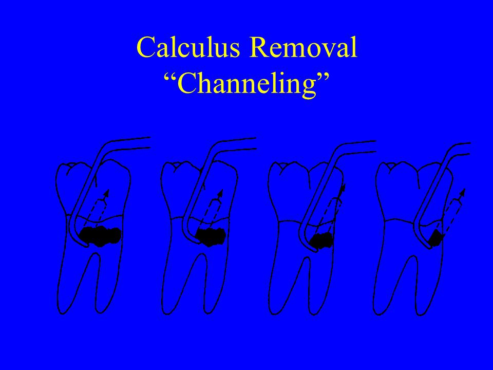 Calculus Removal Channeling