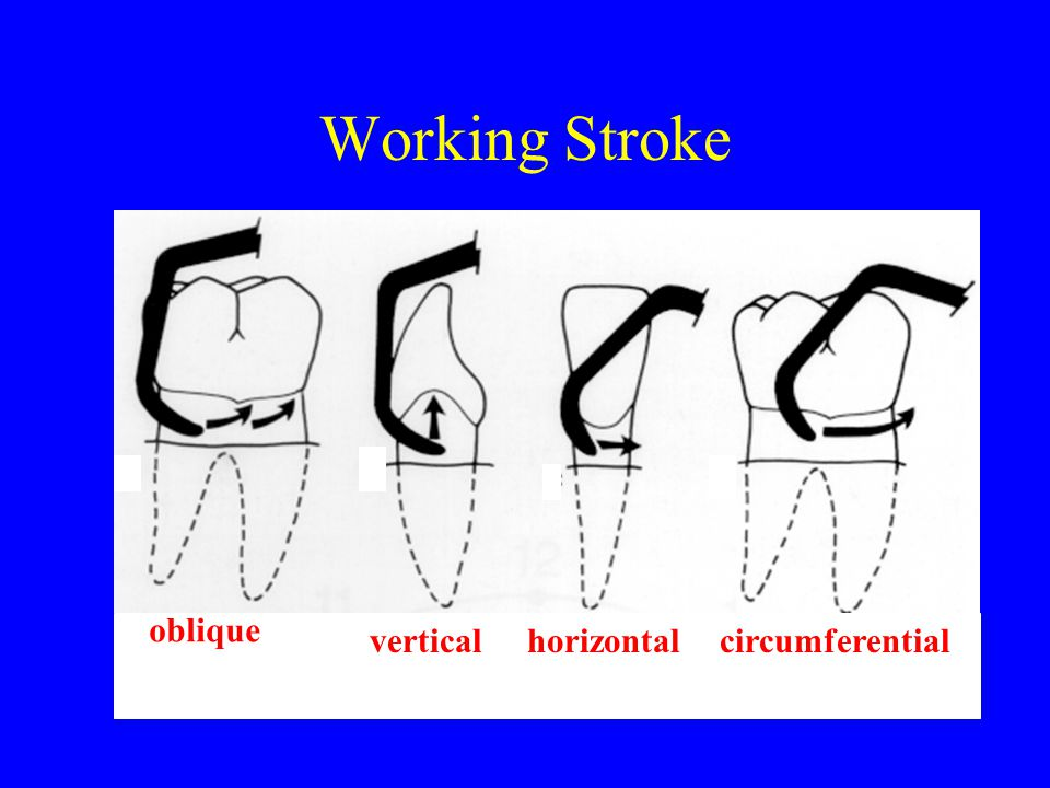 Working Stroke oblique vertical horizontal circumferential