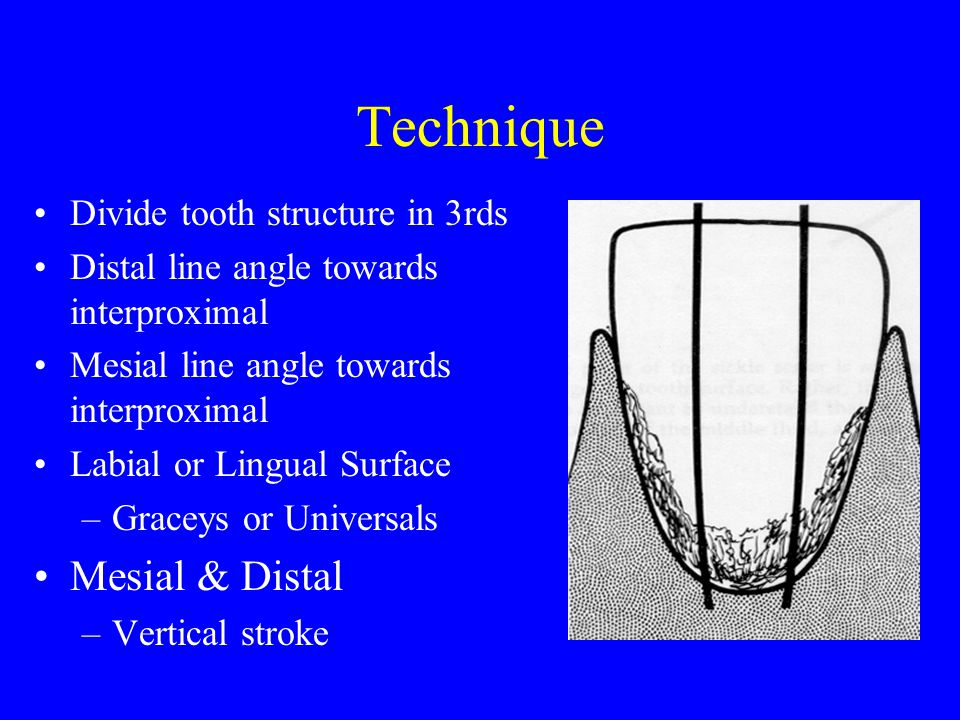 Technique Mesial & Distal Divide tooth structure in 3rds
