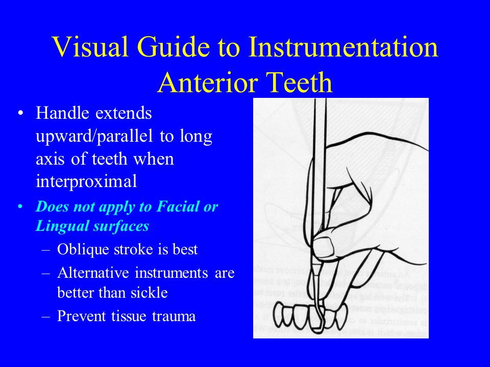 Visual Guide to Instrumentation Anterior Teeth
