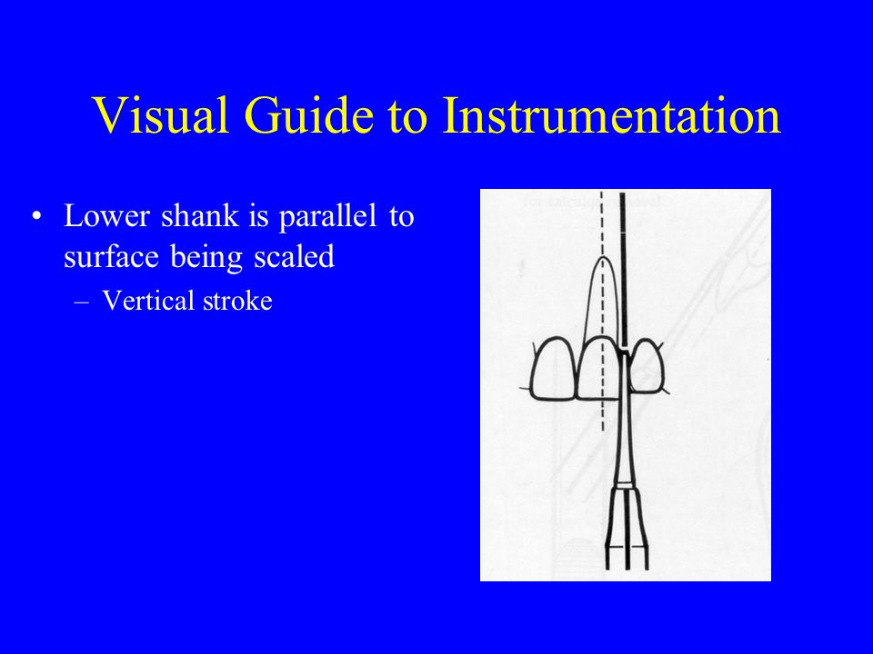 Visual Guide to Instrumentation