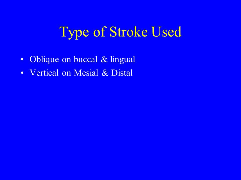 Type of Stroke Used Oblique on buccal & lingual