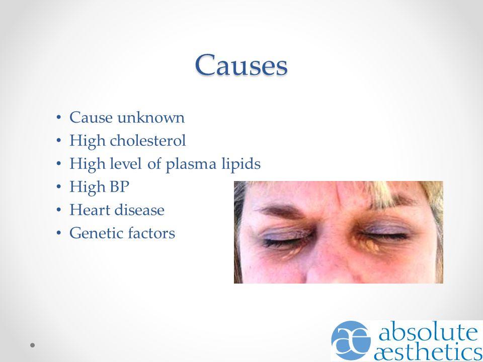 Causes Cause unknown High cholesterol High level of plasma lipids