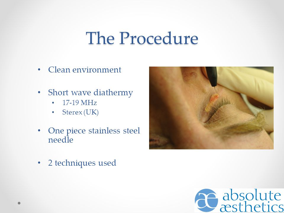 The Procedure Clean environment Short wave diathermy