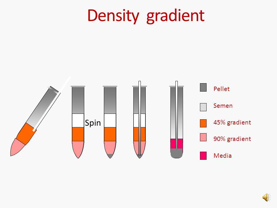 Density gradient Pellet Semen 45% gradient 90% gradient Media Spin