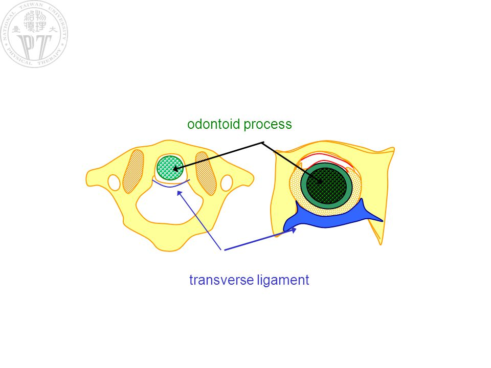odontoid process transverse ligament
