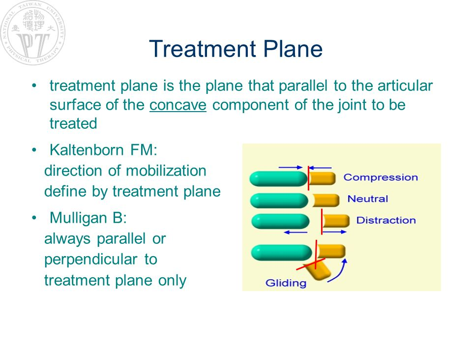 Treatment Plane treatment plane is the plane that parallel to the articular surface of the concave component of the joint to be treated.