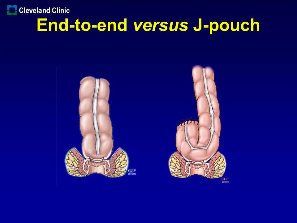 End-to-end versus J-pouch