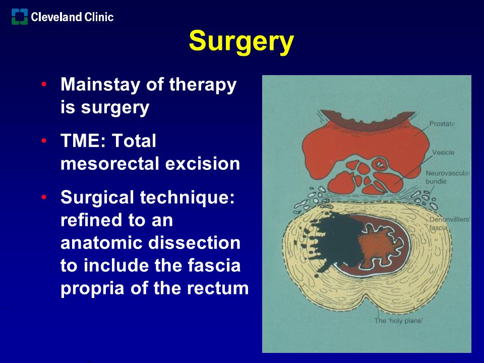 Surgery Mainstay of therapy is surgery TME: Total mesorectal excision