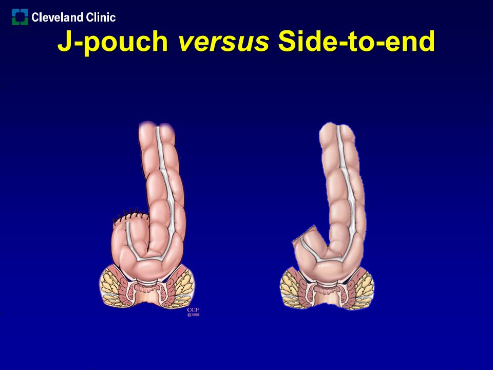J-pouch versus Side-to-end