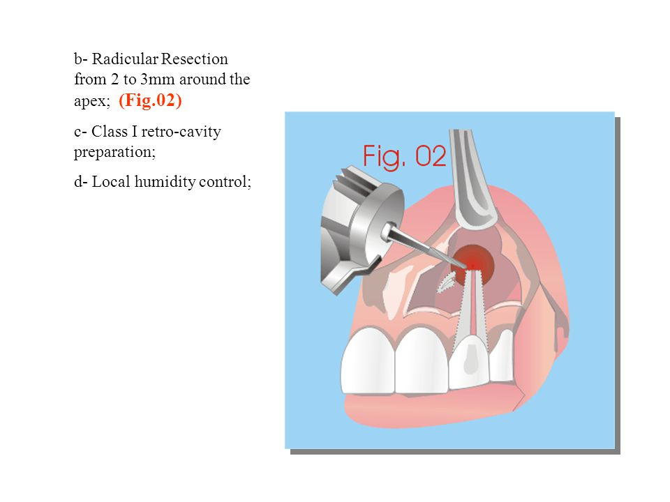 b- Radicular Resection from 2 to 3mm around the apex; (Fig.02)