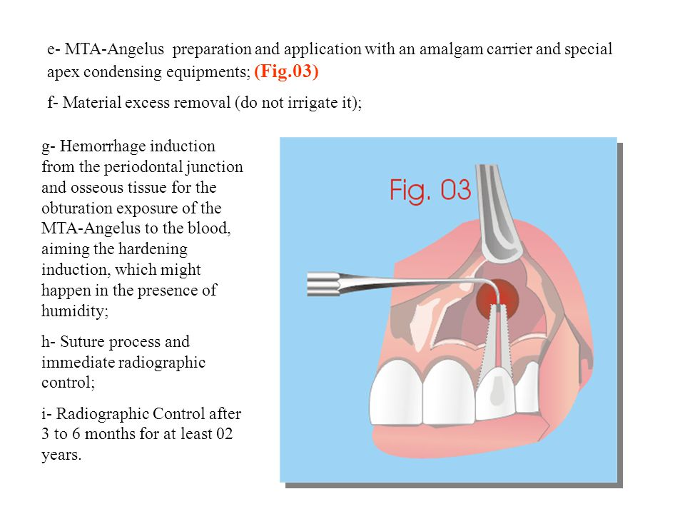 e- MTA-Angelus preparation and application with an amalgam carrier and special apex condensing equipments; (Fig.03)
