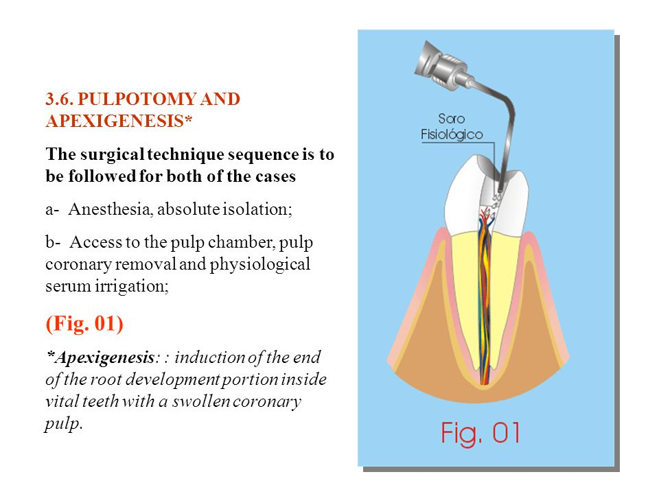 (Fig. 01) 3.6. PULPOTOMY AND APEXIGENESIS*