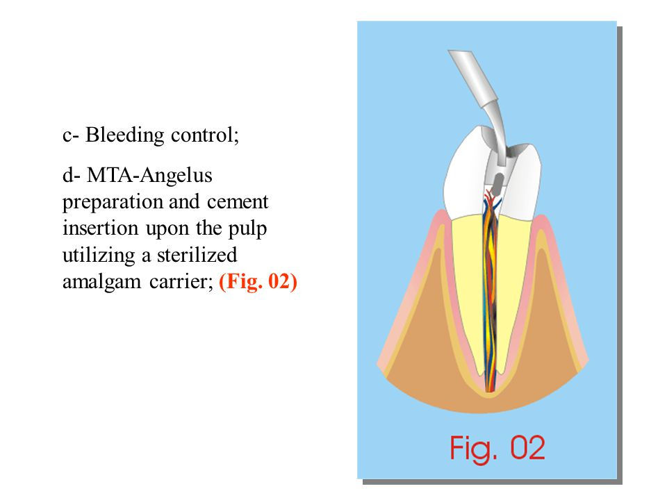 c- Bleeding control; d- MTA-Angelus preparation and cement insertion upon the pulp utilizing a sterilized amalgam carrier; (Fig.
