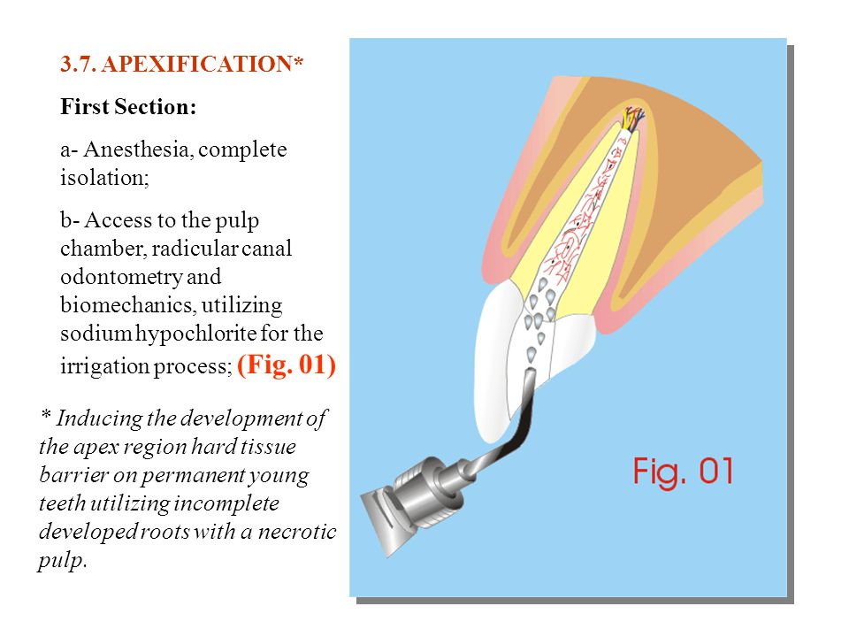 3.7. APEXIFICATION* First Section: a- Anesthesia, complete isolation;