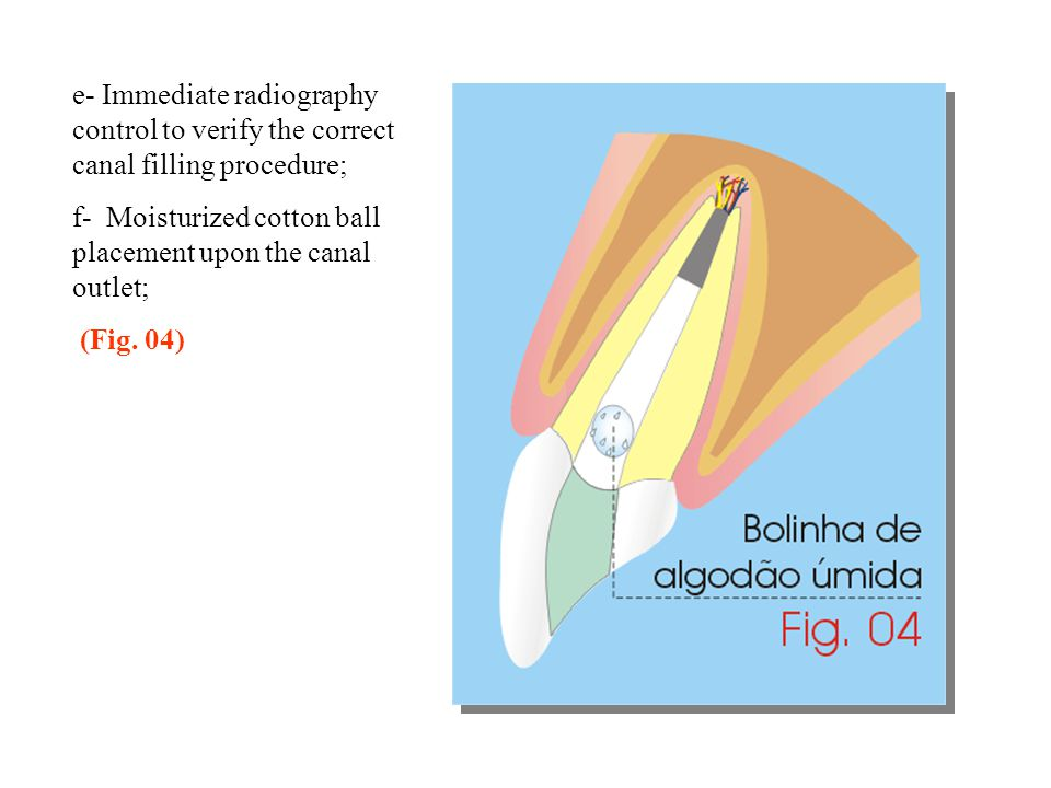 e- Immediate radiography control to verify the correct canal filling procedure;