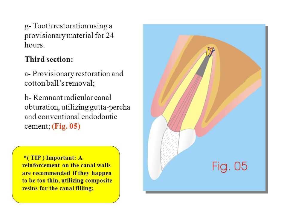 g- Tooth restoration using a provisionary material for 24 hours.