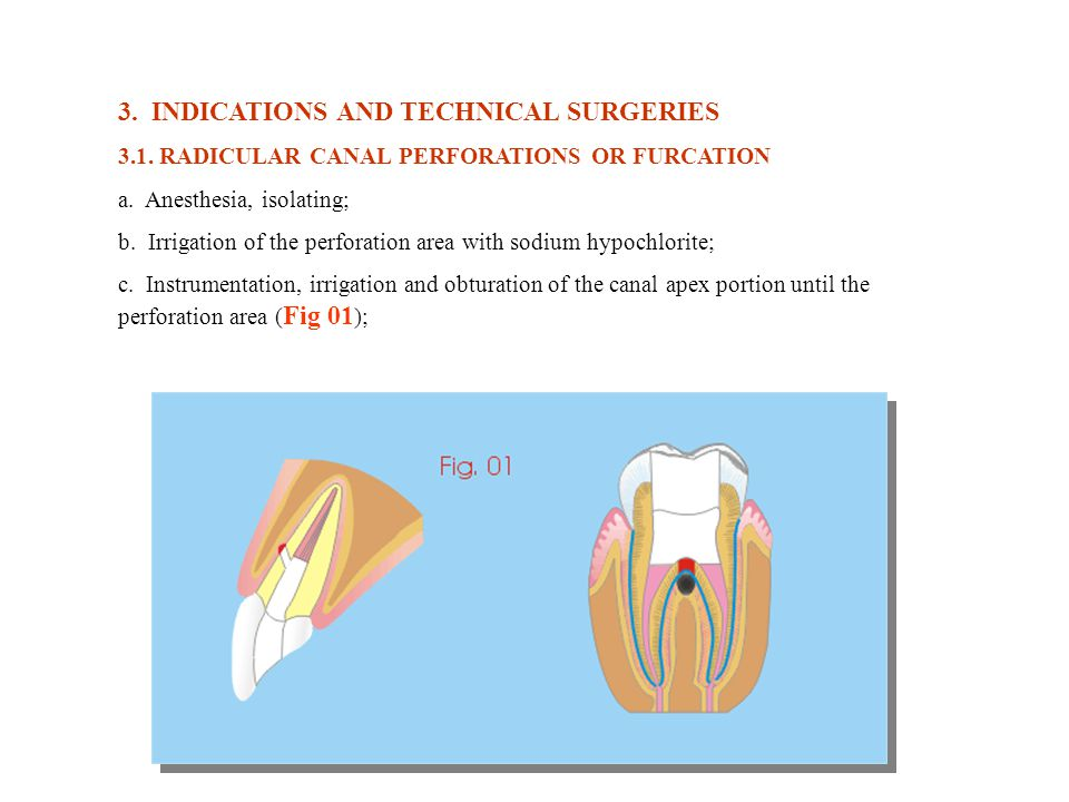 3. INDICATIONS AND TECHNICAL SURGERIES