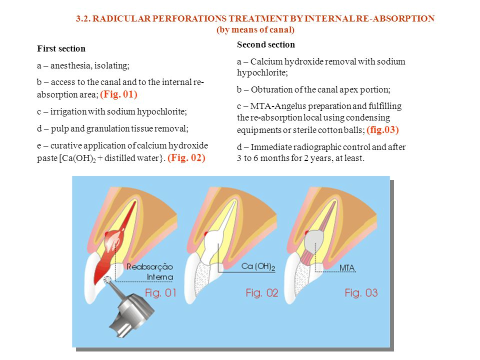 3.2. RADICULAR PERFORATIONS TREATMENT BY INTERNAL RE-ABSORPTION (by means of canal)
