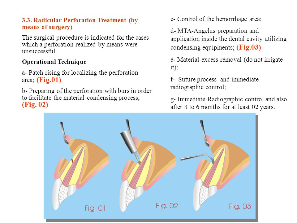 3.3. Radicular Perforation Treatment (by means of surgery)